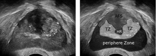 rektaler ultraschall prostata